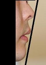 顎プロテーゼ 術後1ヶ月目_c0193771_19174964.jpg