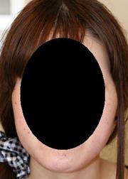 頬・脂肪注入 術後7日目_c0193771_1544120.jpg