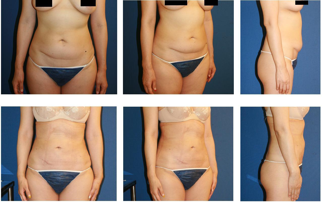 腹部脂肪吸引_d0092965_012015.jpg