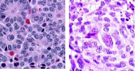 呼吸器系におけるカルチノイド腫瘍_e0156318_1125056.jpg