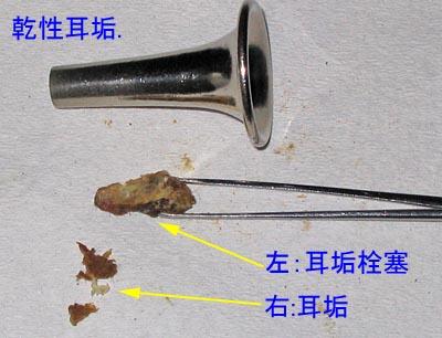 乾性耳垢や耳垢栓塞の写真 ... : 幼児の勉強 : 幼児