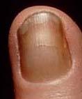 黄色爪症候群(Yellow nail syndrome)_e0156318_1122420.jpg
