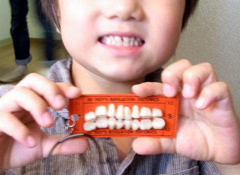 歯のネックレス_d0156336_0295232.jpg