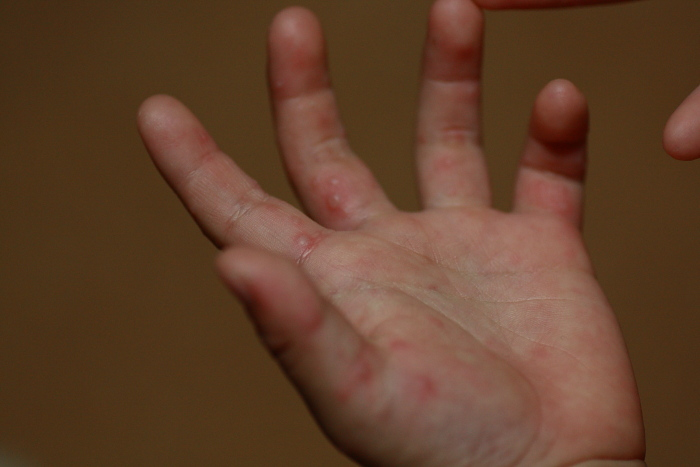 水疱瘡 手足 口 病 違い