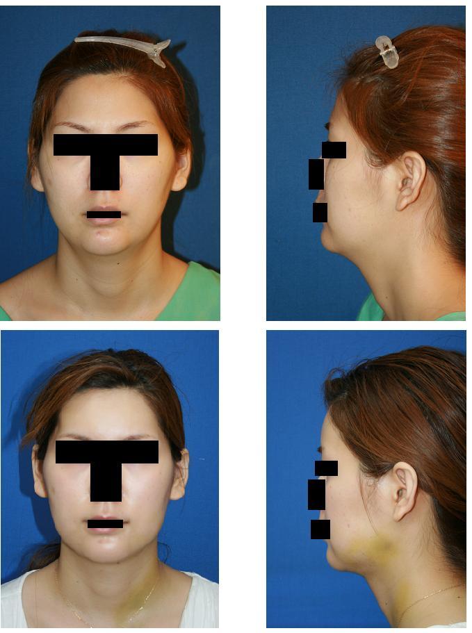 額アパタイト形成術(最小切開法)、顎下脂肪吸引_d0092965_23342342.jpg