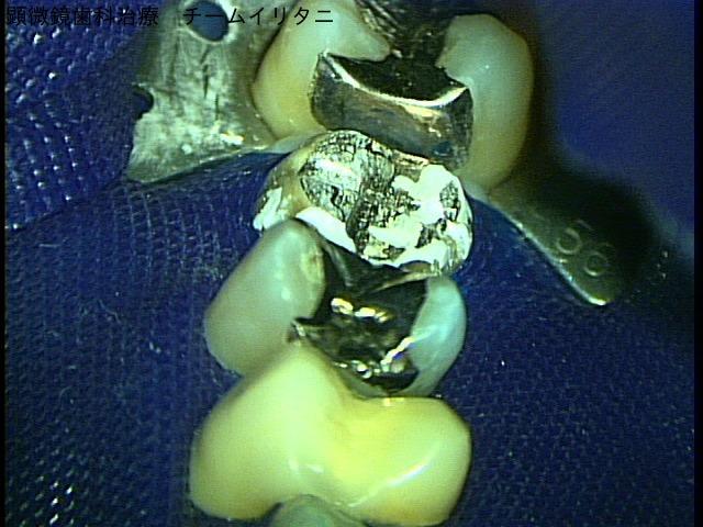 ラバーダム防湿法とマイクロスコープ 顕微鏡歯科治療 東京職人歯医者_e0004468_2010594.jpg