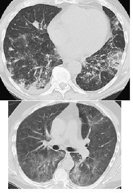 エベロリムスによる肺炎_e0156318_12454513.jpg