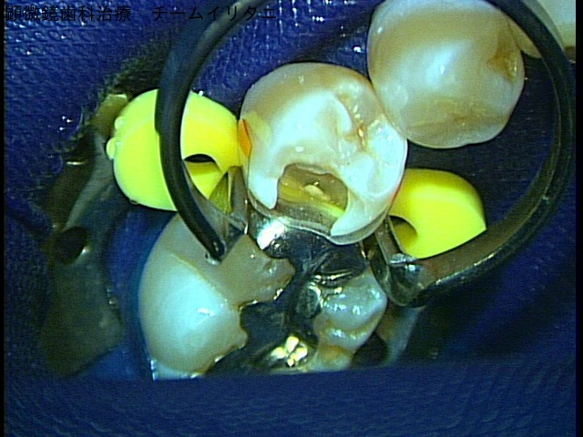 虫歯治療 ラバーダム防湿下で顕微鏡歯科治療 東京職人歯医者_e0004468_23292763.jpg