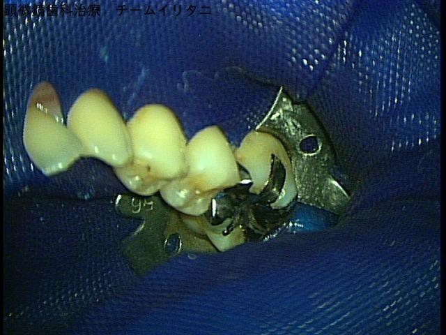 小さく治療出来るラバーダム・マイクロスコープ顕微鏡歯科治療 東京職人歯医者_e0004468_4243437.jpg