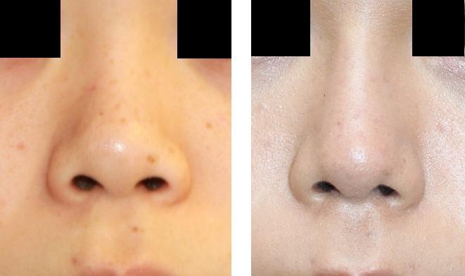 鼻プロテーゼ留置術、鼻尖縮小術(オープン法) :脇山先生(若先生)_d0092965_3231673.jpg