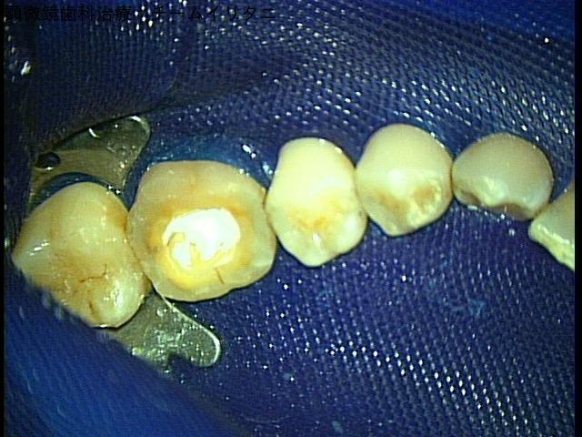 歯根破折症例。東京マイクロスコープ顕微鏡歯科治療_e0004468_10152095.jpg