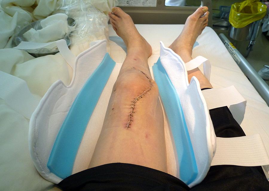 手術を行ってから七日目_d0151813_15585281.jpg