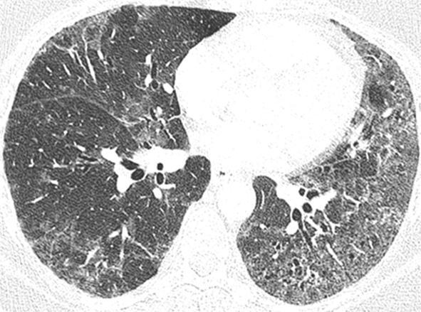喫煙関連肺疾患(SR-ILD):DIP、RB-ILD、CPFE、AEF_e0156318_1337382.jpg