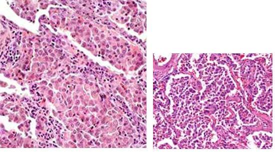 喫煙関連肺疾患(SR-ILD):DIP、RB-ILD、CPFE、AEF_e0156318_13402162.jpg