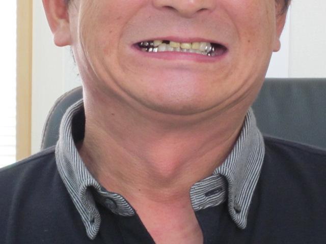 歯医者に行くか・・・_c0196062_1004490.jpg