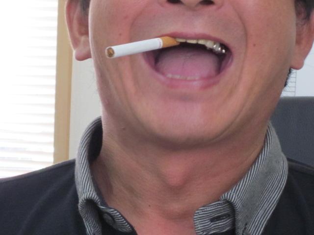 歯医者に行くか・・・_c0196062_1014395.jpg