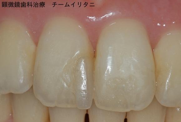顕微鏡治療によるコンポジットレジン(CR)ダイレクトボンディング。審美的な要求 東京職人歯医者_e0004468_0541378.jpg