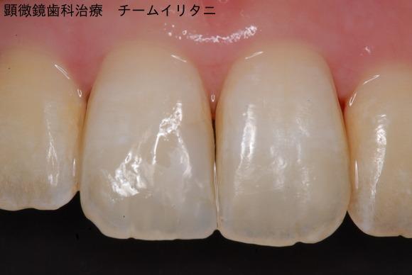 顕微鏡治療によるコンポジットレジン(CR)ダイレクトボンディング。審美的な要求 東京職人歯医者_e0004468_0553719.jpg
