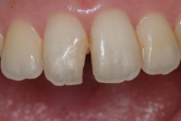 顕微鏡治療によるコンポジットレジン(CR)ダイレクトボンディング。審美的な要求 東京職人歯医者_e0004468_19282422.jpg