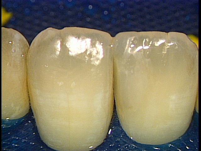 顕微鏡治療によるコンポジットレジン(CR)ダイレクトボンディング。審美的な要求 東京職人歯医者_e0004468_0273012.jpg