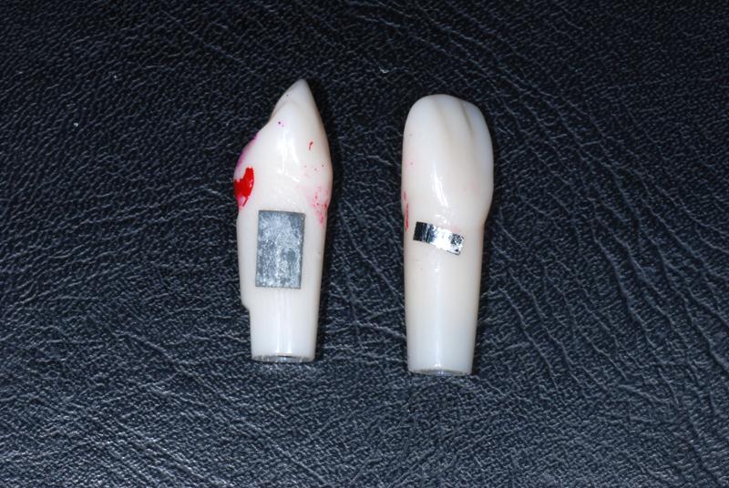 2010.10.01 歯石の探知_b0112648_19114191.jpg