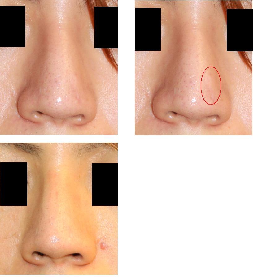 他院鼻尖縮小術術後肥厚性瘢痕治療_d0092965_1303468.jpg