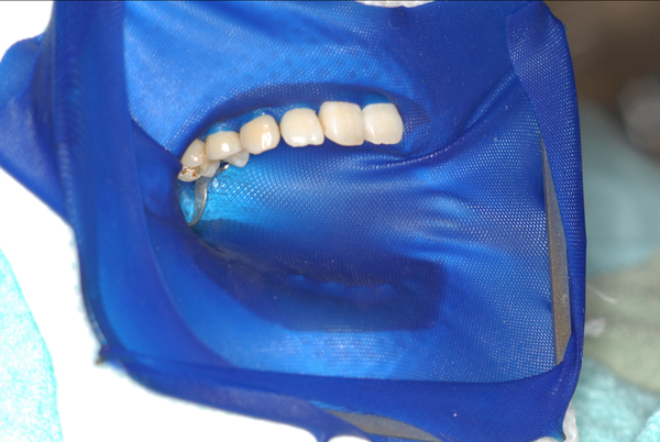 ラバーダム防湿法の現状 日本では標準的治療を受けるのは困難か。東京マイクロスコープ顕微鏡歯科治療_e0004468_18381965.jpg
