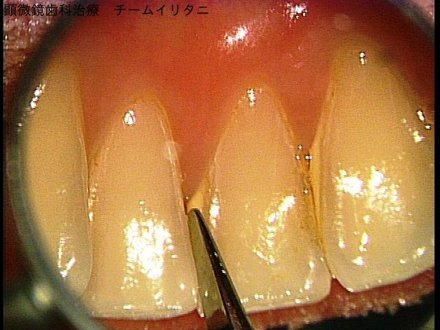 顕微鏡歯科治療のマイクロスコープ使用法の分類 東京マイクロスコープ顕微鏡歯科治療_e0004468_832234.jpg