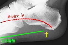 足底腱膜炎(かかとの痛み)_e0097212_14404144.jpg