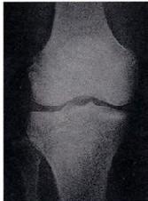 当院の膝の鍼治療_e0097212_23541818.jpg