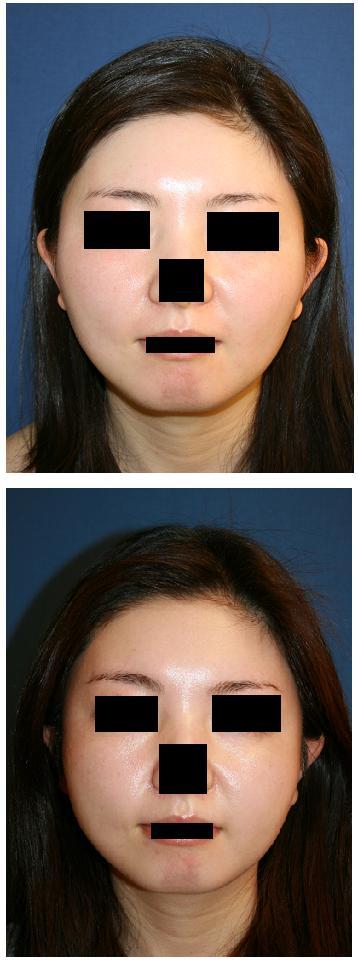 頬骨再構築 術後2カ月   再診へのいざない_d0092965_2204057.jpg