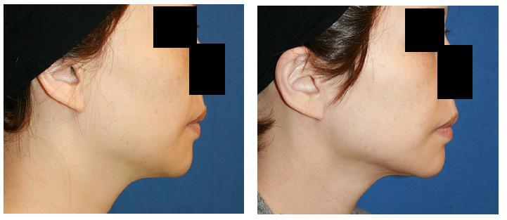 顎下脂肪吸引 術後3カ月_d0092965_32580.jpg