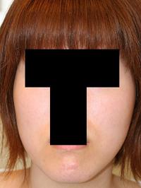 顎削り(オトガイ骨切り) 術後3ヶ月目_c0193771_20553723.jpg