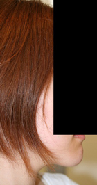 顎削り(オトガイ骨切り) 術後3ヶ月目_c0193771_20554449.jpg