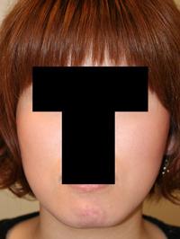 顎削り(オトガイ骨切り) 術後3ヶ月目_c0193771_20555552.jpg