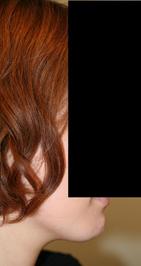 顎削り(オトガイ骨切り) 術後3ヶ月目_c0193771_2056213.jpg