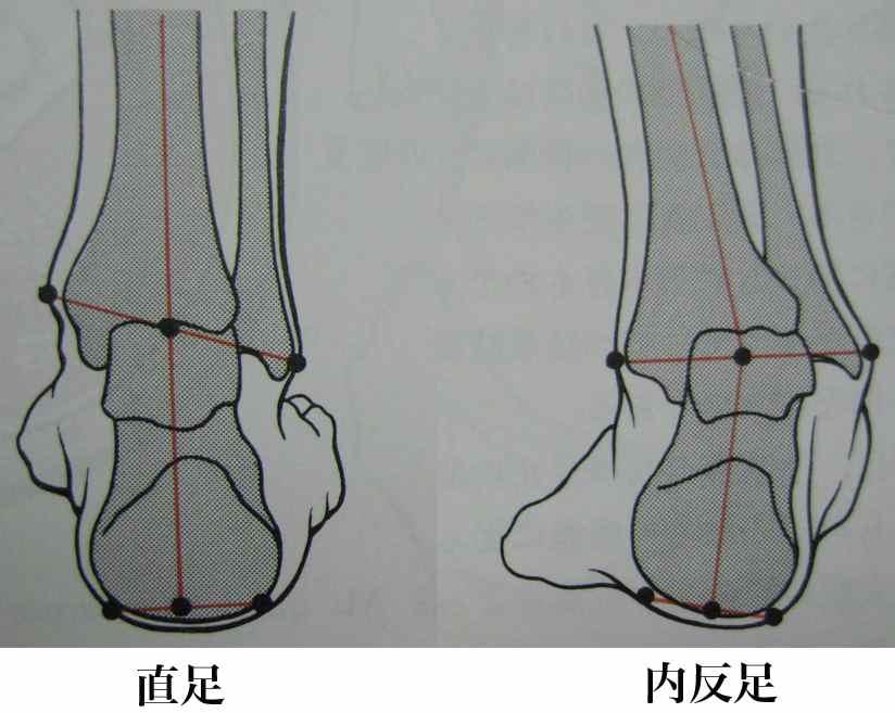 踵[かかと]の骨と繋がっている骨の歪みがよくわかる直足と内反足の図であり... 林足研究所 足&