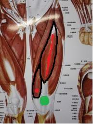 身体の痛み~知られていない筋肉が原因の痛み~_f0214534_14135351.jpg