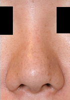 鼻孔縁下降術 術後3ヶ月目_c0193771_17382082.jpg