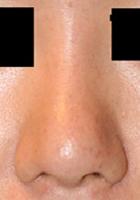 鼻孔縁下降術 術後3ヶ月目_c0193771_17383279.jpg