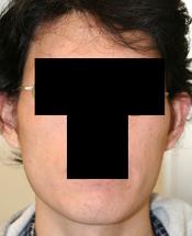 輪郭手術(エラ・頬骨) 術後1ヶ月目_c0193771_16235913.jpg