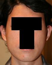 輪郭手術(エラ・頬骨) 術後1ヶ月目_c0193771_16241722.jpg