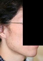 輪郭手術(エラ・頬骨) 術後1ヶ月目_c0193771_1624711.jpg