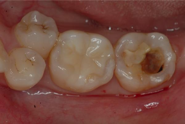 ラバーダムと顕微鏡を併用した虫歯の歯科治療 東京マイクロスコープ顕微鏡歯科治療_e0004468_18213292.jpg
