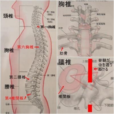 骨折と骨粗鬆症と椎間板ヘルニア_a0084343_12575671.jpg