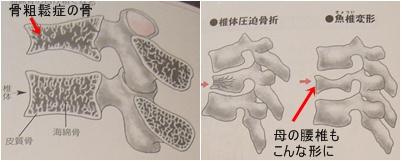 骨折と骨粗鬆症と椎間板ヘルニア_a0084343_13174128.jpg