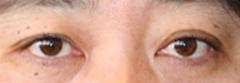 上・下瞼のタルミ取り 術後1ヶ月目_c0193771_1833408.jpg