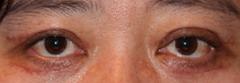 上・下瞼のタルミ取り 術後1ヶ月目_c0193771_18335274.jpg