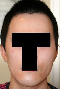 輪郭手術(頬骨・エラ) 術後1ヶ月目_c0193771_1125308.jpg