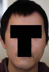 輪郭手術(頬骨・エラ) 術後1ヶ月目_c0193771_11254297.jpg